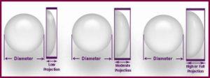 Виды проекции импланта