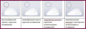 Выбор формы импланта