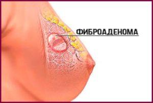 Жизнь после удаления фиброаденомы молочной железы