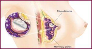Лечение фиброаденомы молочной железы без операции