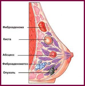 Фиброаденома молочных желез