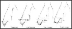 Опущение молочных желез