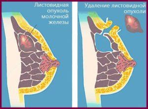 Удаление листовидной фиброаденомы молочной железы