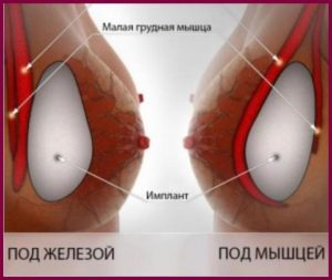 Установка грудного импланта
