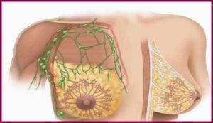 Лечение дуктектазии молочной железы