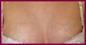 Тонкая кожа на груди