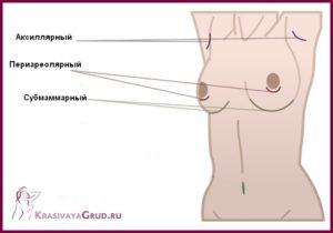Доступы для аугментационной маммопластики