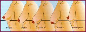 Шкала опущения груди