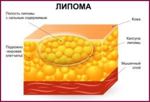 Липома молочной железы