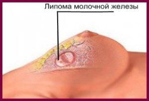 Причины липомы молочной железы