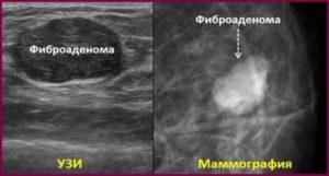 Снимки фиброаденомы на узи и маммографии