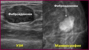Фиброадеома на узи и маммографии