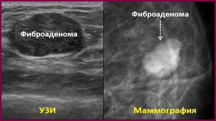 Маммография на картинках