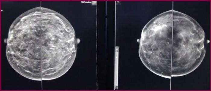 Результаты томосинтеза молочных желез
