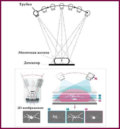 Схема в режиме томосинтеза