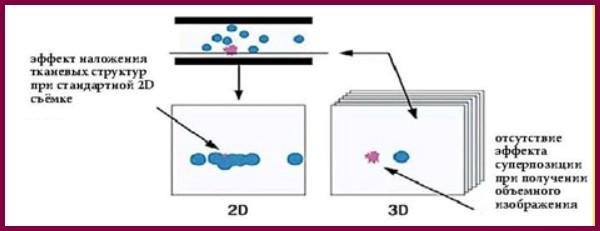 Схема визуализации при маммографии