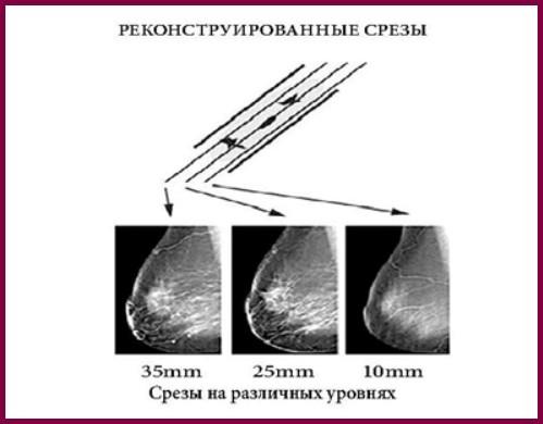 Срезы в режиме томосинтеза
